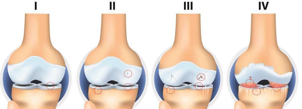 cauze ale inflamației articulare pe picioare