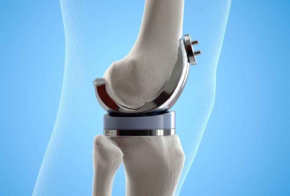 durata durerii după înlocuirea genunchiului