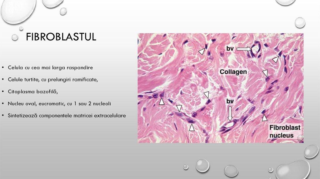 FISURA SI RUPTURA DE MENISC - Hipertrofia țesutului conjunctiv și cartilaj