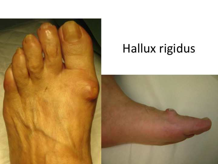 artroza articulațiilor degetelor de la picior