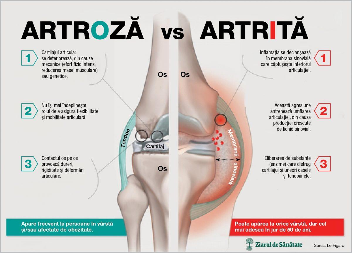 sindroame de artroză la genunchi