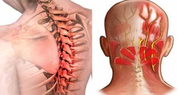 nodul limfatic în gât doare articulația umărului