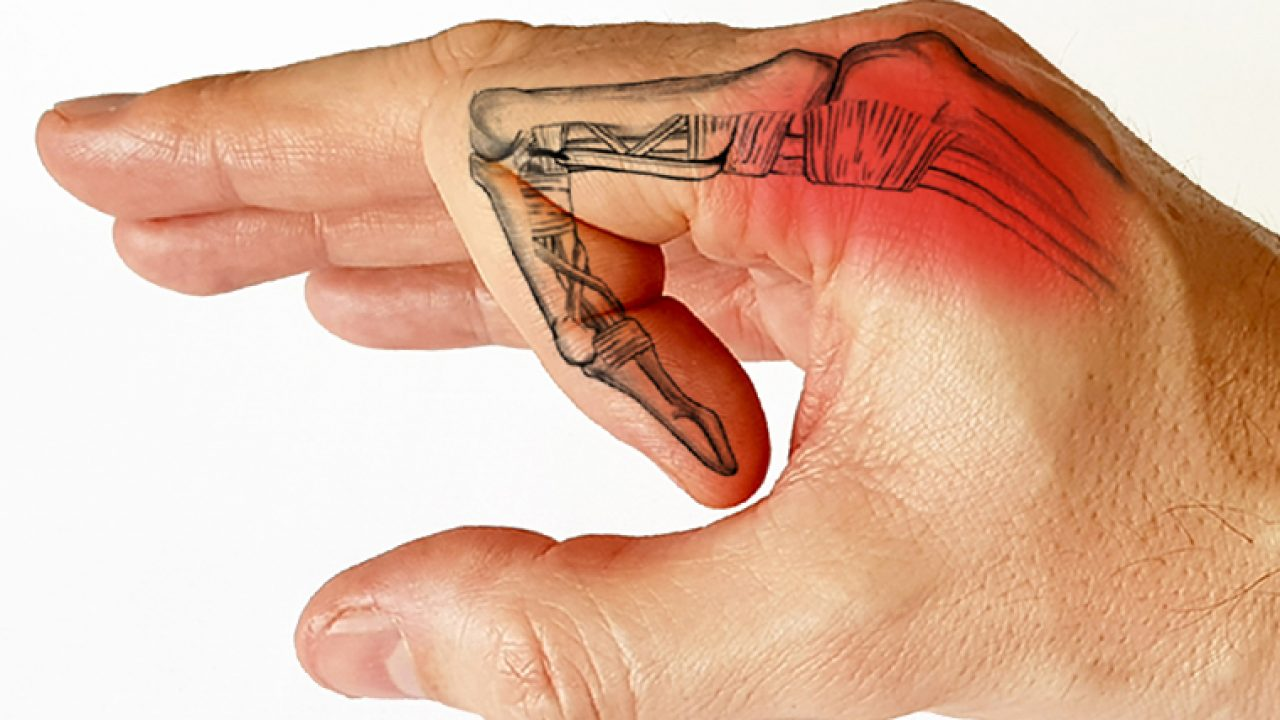 Problemele articulației pumnului, Articulația umflată și dureroasă a degetului mic
