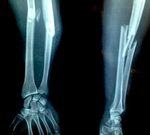 refacerea articulației după fracturarea mâinii