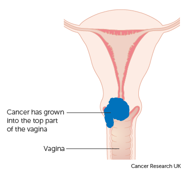 osteocondroza unguentului cervical