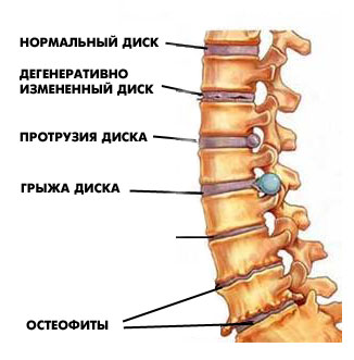Unguente geluri pentru osteochondroza coloanei vertebrale cervicale - cazare-bucuresti-apartamente.ro
