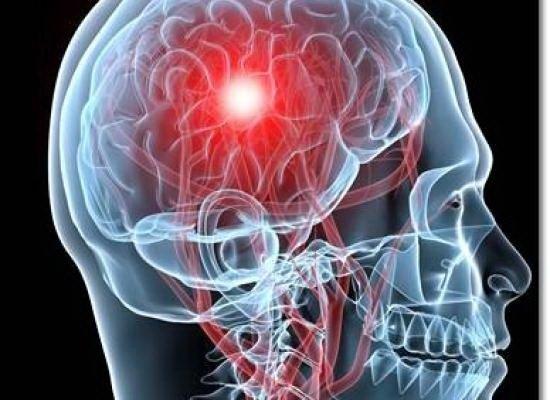 dureri articulare după accident vascular cerebral ischemic.