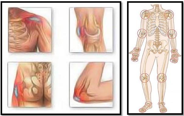articulațiile și tendoanele rănesc în timpul exercițiului fizic