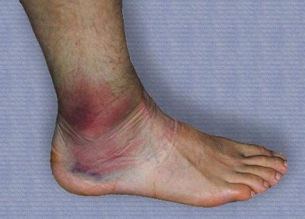 tratament de instabilitate a gleznei cronice