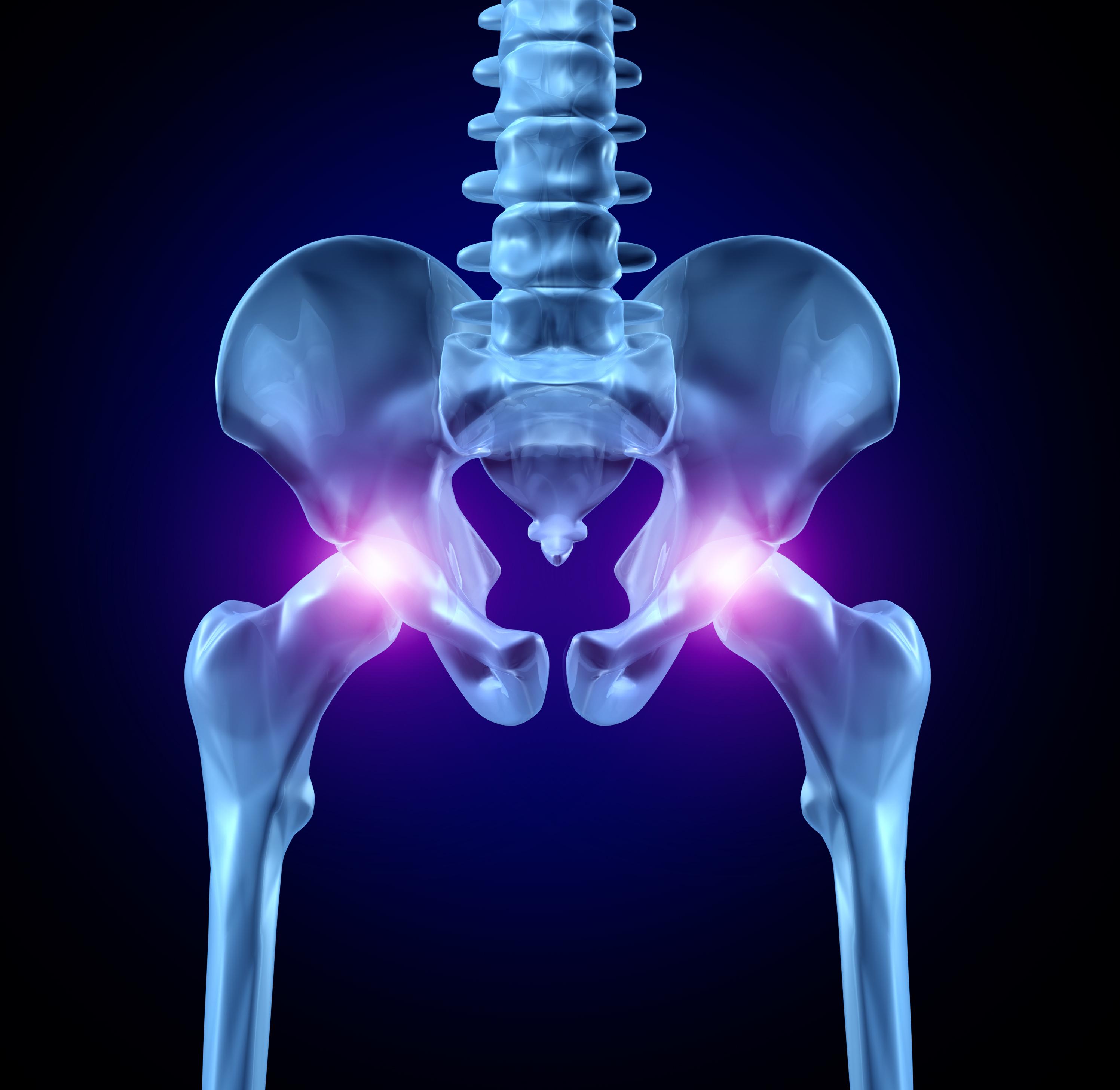 cum poate fi tratată coxartroza articulației șoldului artroza articulațiilor