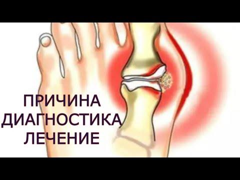 Subluxarea tratamentului articulației șoldului