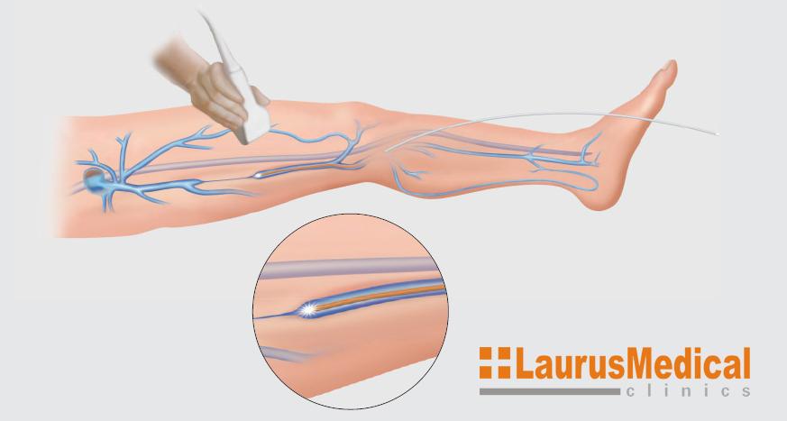Terapie cu laser - cazare-bucuresti-apartamente.ro