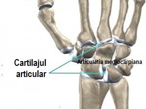 denivelări apoase rănesc articulațiile tratamentul artrozei post-traumatice a gleznei