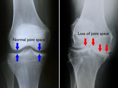 Radiografie a gradului de artroză a genunchiului