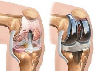 poate înota cu artroza genunchiului