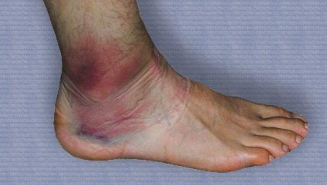 Deteriorarea ligamentelor gleznei cum se bandajează Simptomele leziunilor ligamentului gleznei