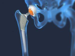 Este posibil să aburi cu artroza articulației șoldului