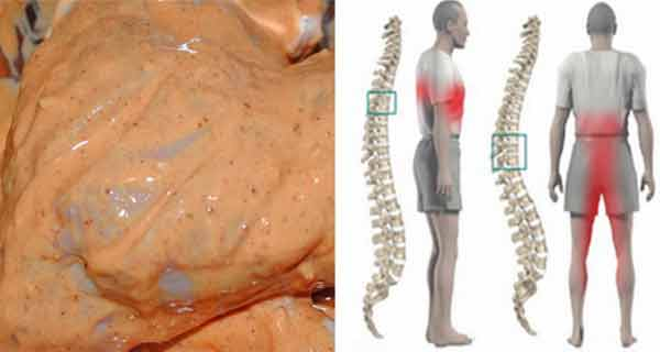 Cand trebuie sa ne ingrijoreze durerea lombara
