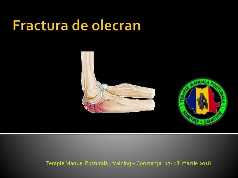 tratamentul artrozei palmare