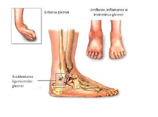durere în articulațiile mâinii și piciorului tratarea bolilor articulare
