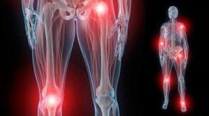 Cinci alimente ideale pentru durerile articulare