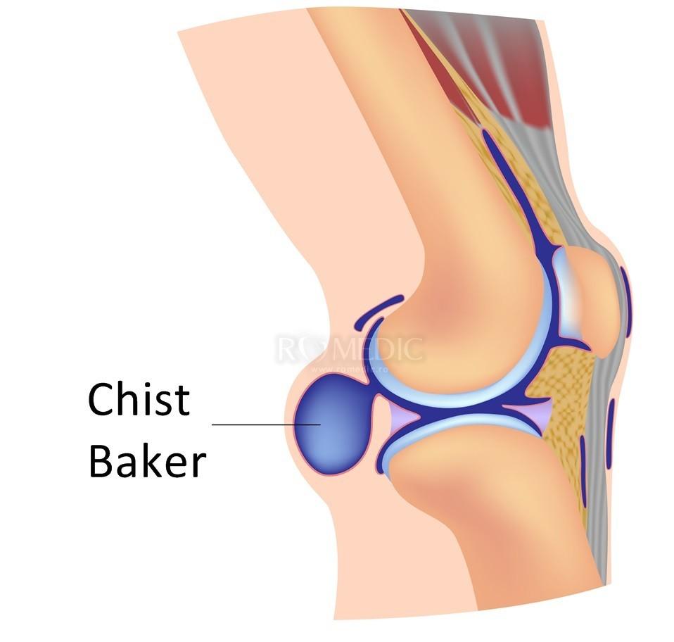 boli ale articulației genunchiului