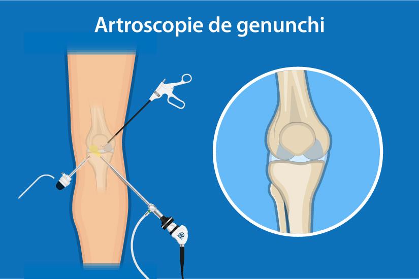 Examinarea și tratamentul genunchiului, Account Options