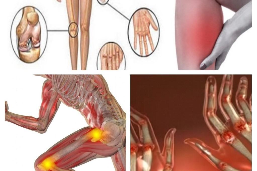 Remedii de artrită