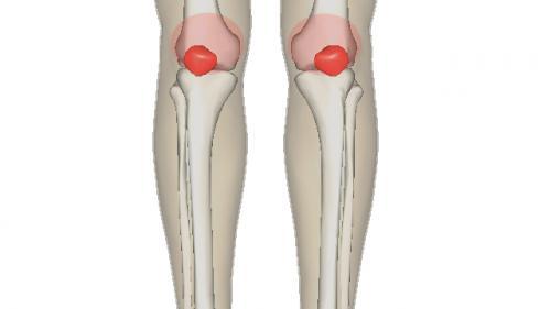 dureri articulare cu osteoporoză de ce bolile articulare sunt periculoase