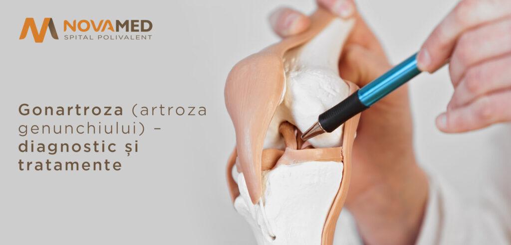 tratamentul artrozei ortopedice