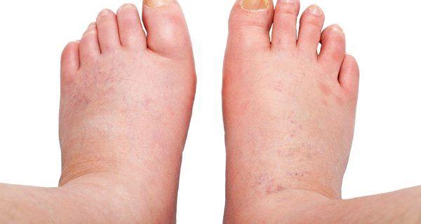 maini si picioare umflate si dureroase articulațiile rănite de insulină