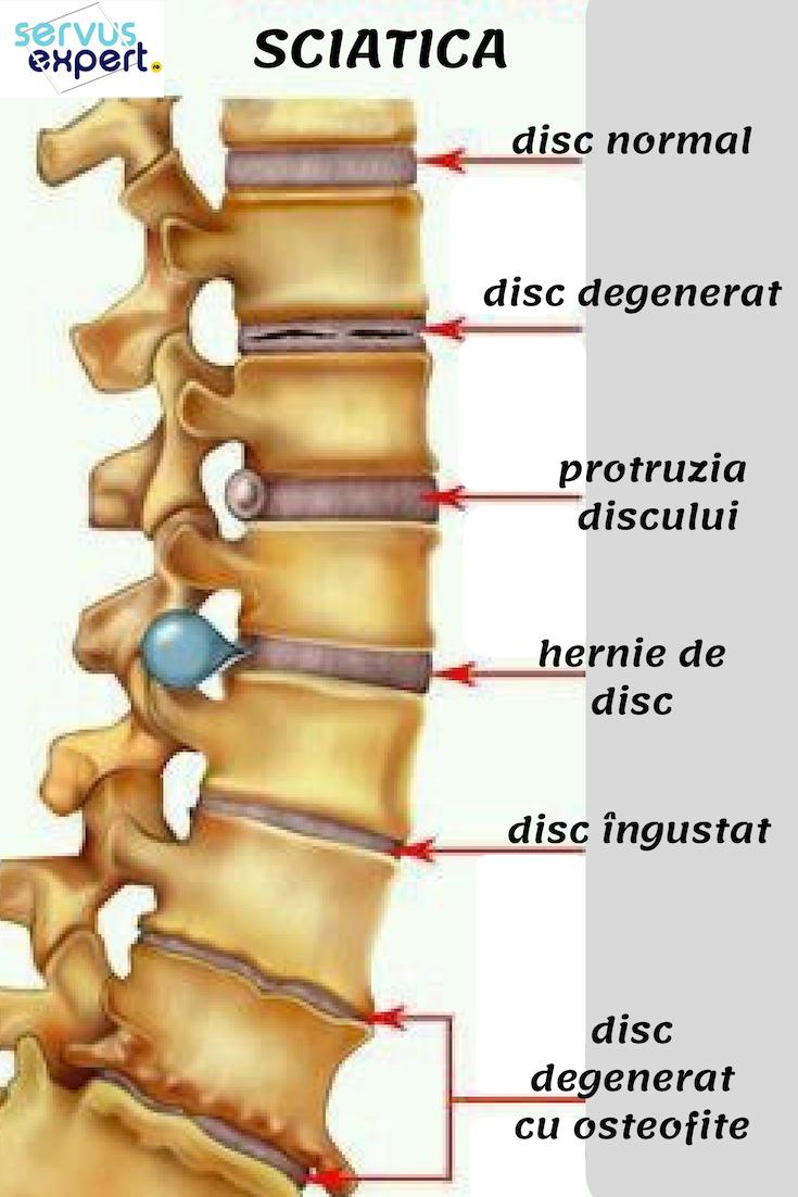 Articulația durerii blocajului medical