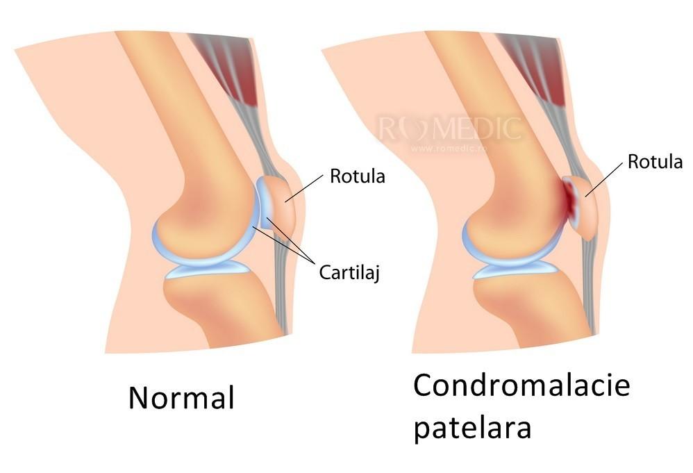 Genunchii articulației genunchiului