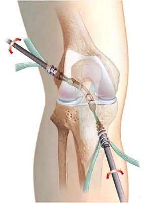 cum să dezvolți ligamentele genunchiului după o accidentare