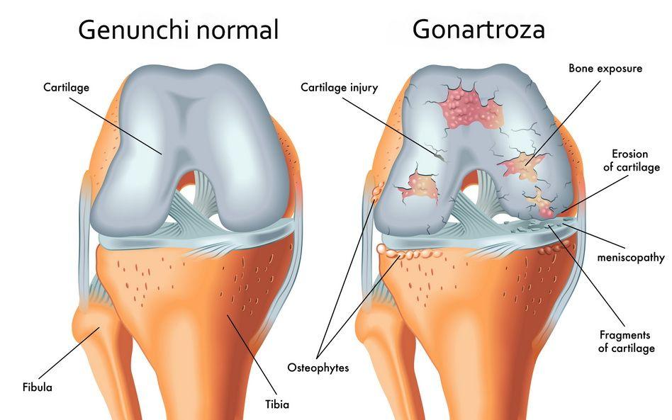 Ozonoterapie pentru artroza articulațiilor