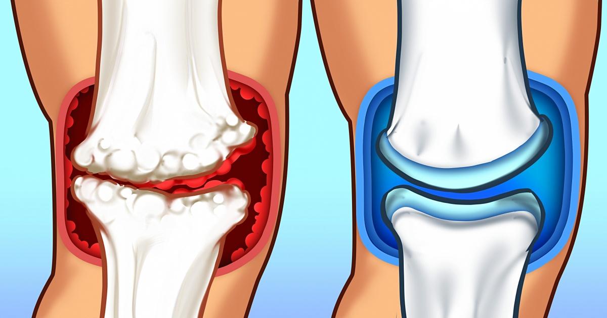 inflamație articulară datorată metabolismului