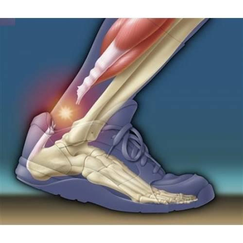 există un tratament cu artroză dureri articulare la nivelul picioarelor cum să tratezi