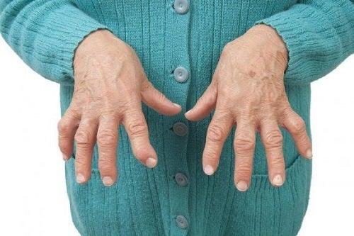 tratați artrita reumatoidă cu homeopatie