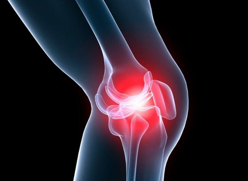 cu artroza genunchiului, articulațiile se schimbă sau nu