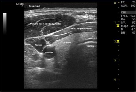 Antecedente medicale de poliosteoartroză articulară