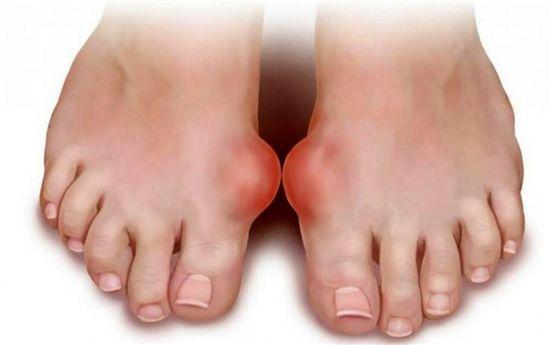 articulația genunchiului este umflată tendoanele dureri articulare