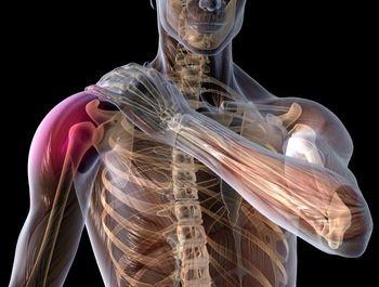 dureri de umăr după fractură artroza simptome medicamente de tratament