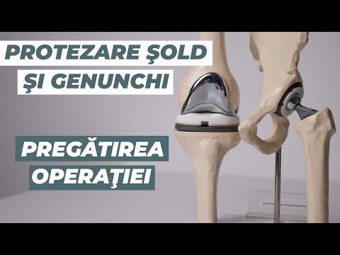 complicații ale durerilor de artroplastie articulară antiinflamatoare nesteroidiene pentru articulații