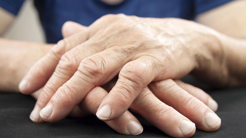 ar trebui tratată artrita reumatoidă artroza genunchiului ce trebuie făcut
