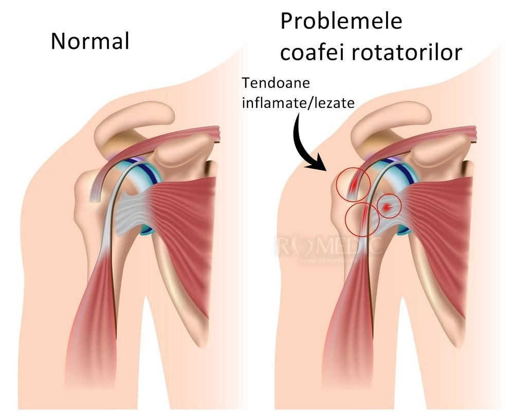 Capsula de durere a articulației umărului ce este