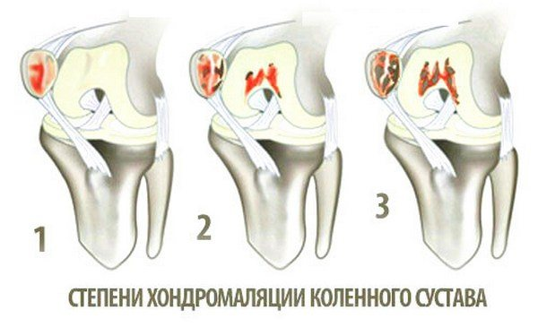 boli ale ligamentelor articulației șoldului