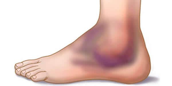 ruperea ligamentului lateral al tratamentului articulației genunchiului