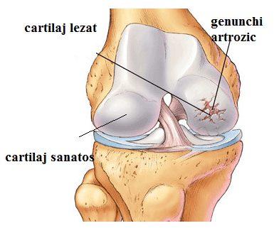 cum să încetinească dezvoltarea artrozei genunchiului Tratamentul Ayurveda al artrozei