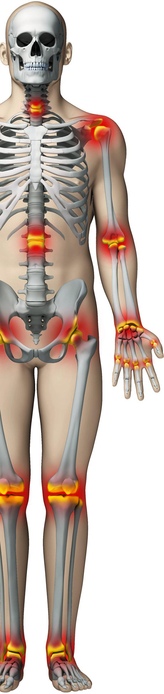 dureri articulare la coapsa