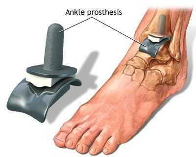 cum să tratezi pastile de artroză a gleznei de ce articulatiile ranesc la 30 de ani